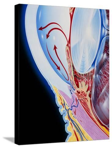 Art of Section Through Human Eye Showing Glaucoma-John Bavosi-Stretched Canvas Print