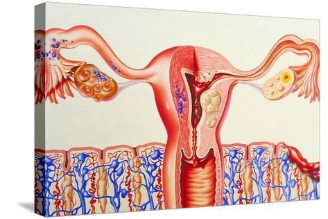 Female Reproductive Diseases-John Bavosi-Stretched Canvas Print