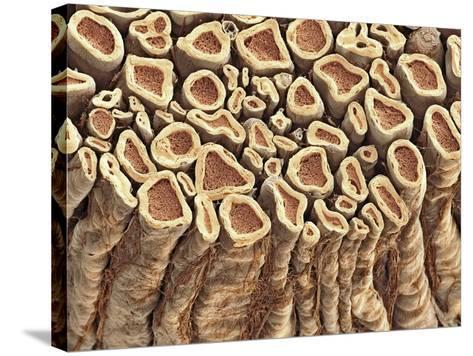 Spinal Root Nerves, SEM-Thomas Deerinck-Stretched Canvas Print