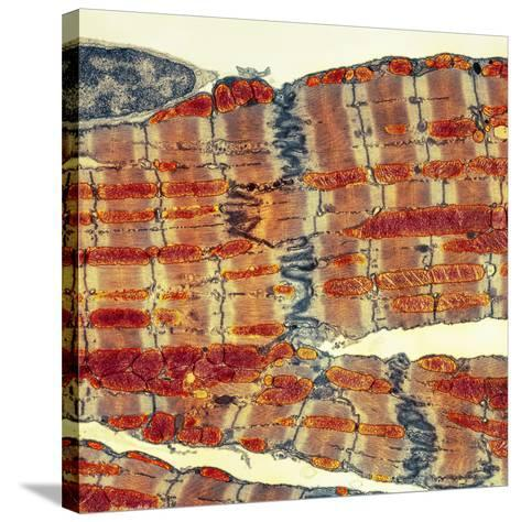 Cardiac Muscle, TEM-Thomas Deerinck-Stretched Canvas Print