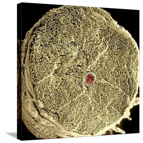 Human Spinal Nerve, SEM-Thomas Deerinck-Stretched Canvas Print