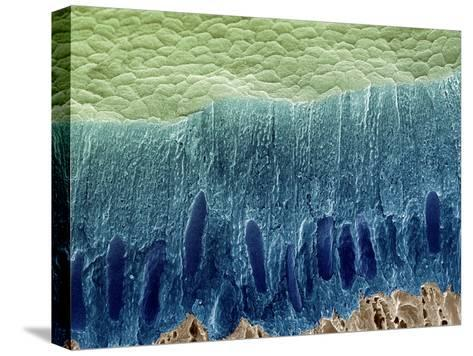 Tooth Enamel Formation, SEM-Steve Gschmeissner-Stretched Canvas Print