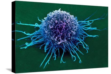 Coloured SEM of a Cancer Cell-Steve Gschmeissner-Stretched Canvas Print