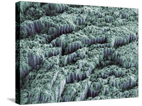 Tooth Enamel, SEM-Steve Gschmeissner-Stretched Canvas Print