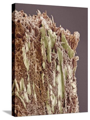 Dental Plaque, SEM-Steve Gschmeissner-Stretched Canvas Print