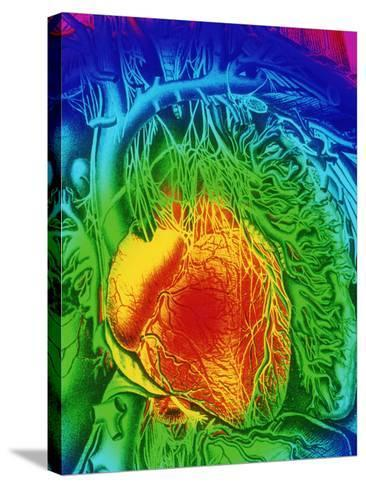 Mascagni Artwork of Human Heart with Its Nerves-Mehau Kulyk-Stretched Canvas Print