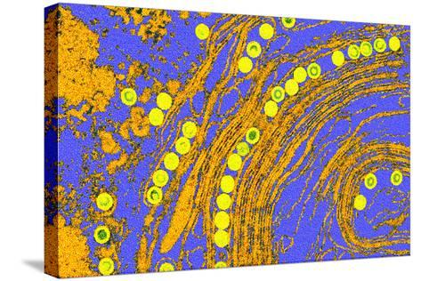 Coloured TEM of Herpes Simplex Viruses Inside Cell-Dr. Linda Stannard-Stretched Canvas Print