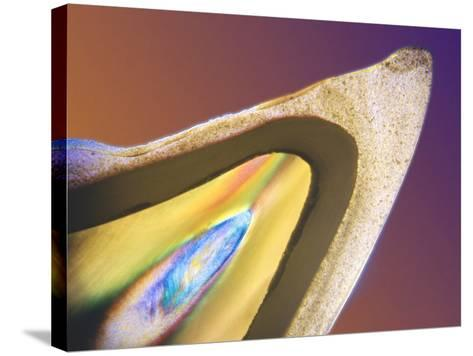 Polarised LM of a Tooth with a Dental Crown-Volker Steger-Stretched Canvas Print