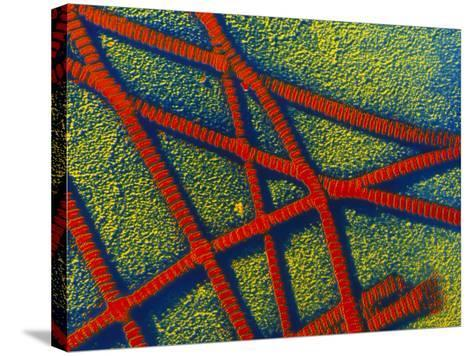 False-colour TEM of Collagen Fibrils--Stretched Canvas Print