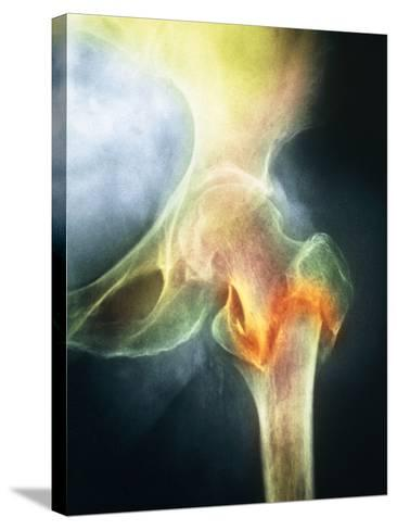 Coloured X-ray of Femur Fracture In Osteoporosis--Stretched Canvas Print