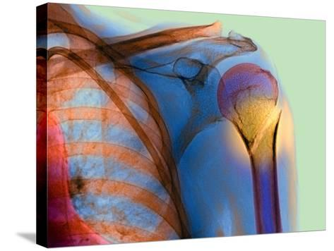 Broken Upper Arm Bone, X-ray-Du Cane Medical-Stretched Canvas Print