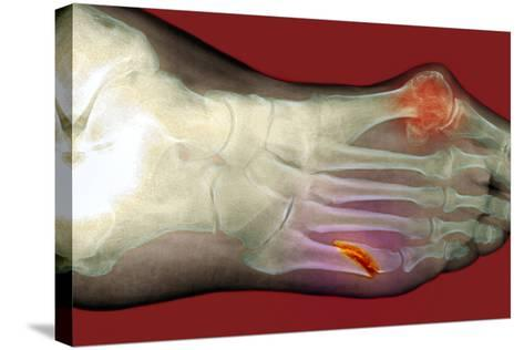 Fractured Foot-Du Cane Medical-Stretched Canvas Print