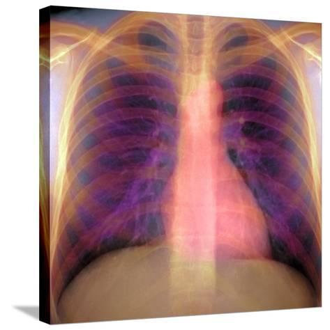 Lungs And Heart, X-ray-Du Cane Medical-Stretched Canvas Print