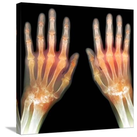 Rheumatoid Arthritis of the Hands, X-ray-Du Cane Medical-Stretched Canvas Print