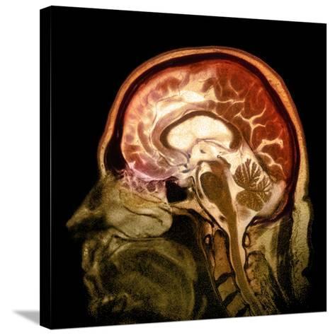 Alcoholic Dementia, MRI Scan-Du Cane Medical-Stretched Canvas Print