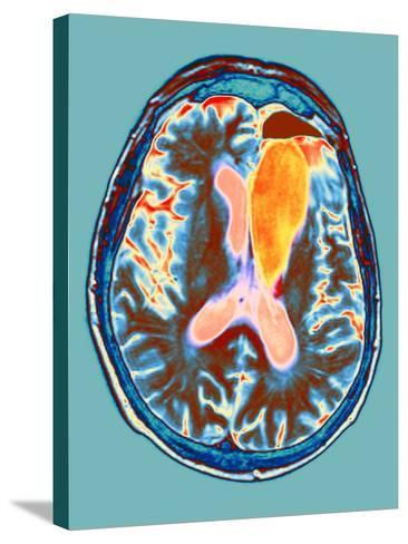 Brain Cancer Treatment, MRI Scan-Du Cane Medical-Stretched Canvas Print