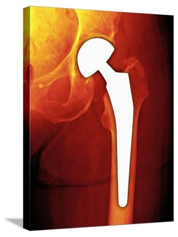 Total Hip Replacement, X-ray-Miriam Maslo-Stretched Canvas Print