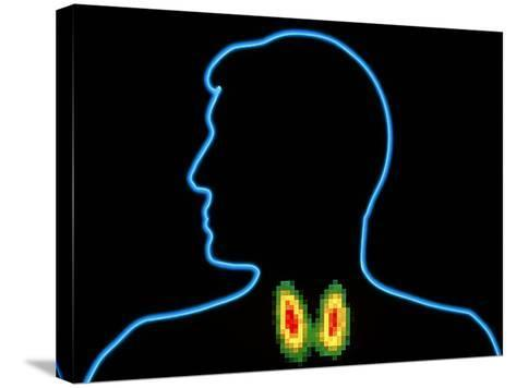 Coloured Gamma Scan of Normal Human Thyroid Gland-PASIEKA-Stretched Canvas Print