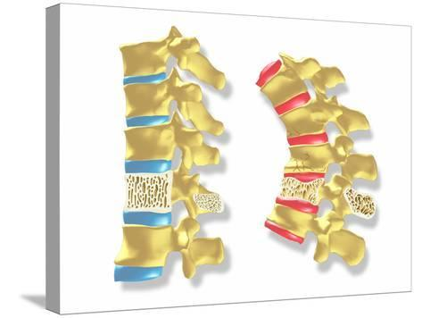 Osteoporosis-PASIEKA-Stretched Canvas Print