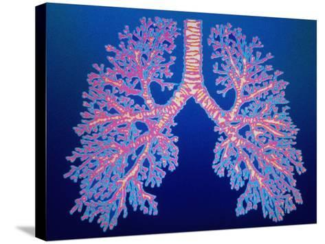 Bronchial Tree of Lungs-PASIEKA-Stretched Canvas Print