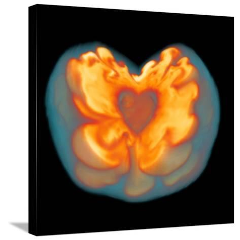 Supernova Explosion-Leonhard Scheck-Stretched Canvas Print