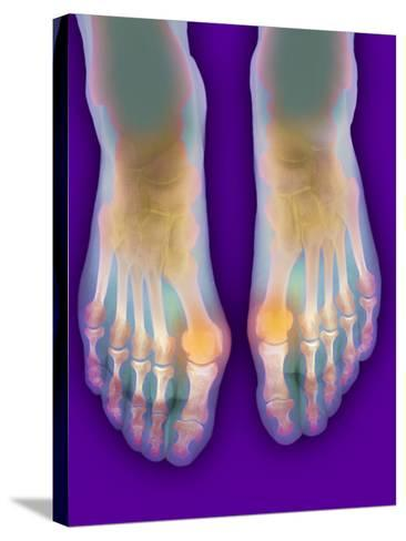 Bunions, X-ray-Science Photo Library-Stretched Canvas Print