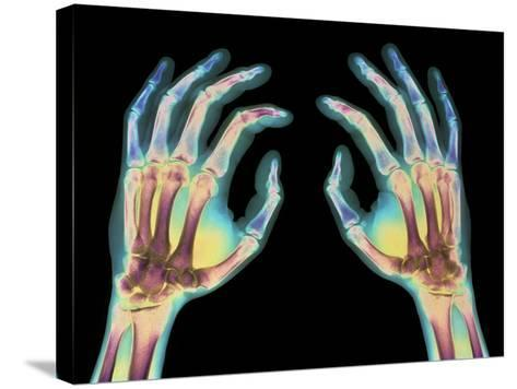 Coloured X-ray of Healthy Human Hands-Science Photo Library-Stretched Canvas Print