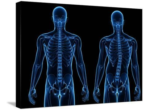 Scoliosis of the Spine, Artwork-SCIEPRO-Stretched Canvas Print
