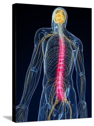Back Pain, Conceptual Artwork-SCIEPRO-Stretched Canvas Print