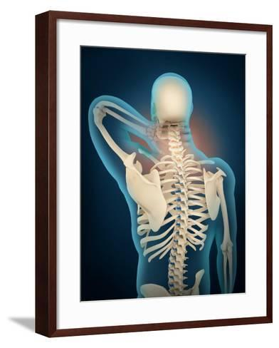 Medical Illustration Showing Inflammation in Human Neck Are--Framed Art Print