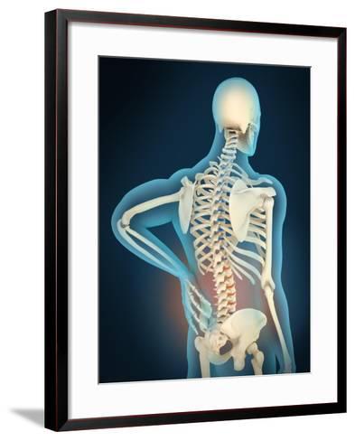 Medical Illustration Showing Inflammation in Human Back Are--Framed Art Print