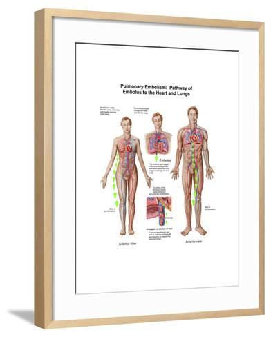 Pulmonary Embolism, Pathway of Embolus to the Heart and Lungs--Framed Art Print