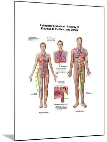 Pulmonary Embolism, Pathway of Embolus to the Heart and Lungs--Mounted Art Print