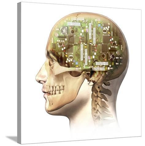 Male Human Head with Skull and Artificial Electronic Circuit Brain--Stretched Canvas Print