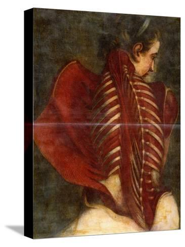 The Flayed Angel, C.1745-Jacques-Fabien Gautier d'Agoty-Stretched Canvas Print