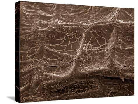 Scanning Electron Micrograph (Sem): Mycorrhiza--Stretched Canvas Print