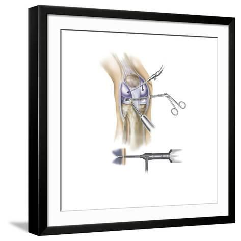 Detail of Human Knee Showing Insertion of Arthroscopic Instruments--Framed Art Print