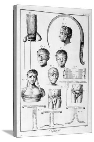 Surgery, 1751-1777-Denis Diderot-Stretched Canvas Print
