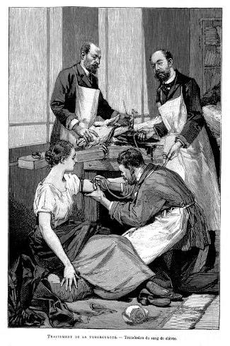 A Tuberculosis Patient Being Given a Transfusion of Goat's Blood, 1891--Stretched Canvas Print