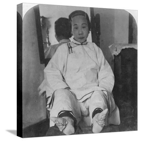 A High Caste Lady's Dainty 'Lily Feet, Showing Method of Deformity, China, 1900-Underwood & Underwood-Stretched Canvas Print