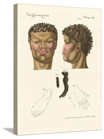The Hottentot or Bushman--Stretched Canvas Print
