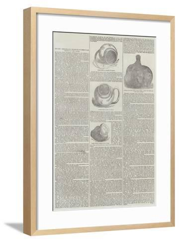 On Some Remarkable Examples of Irregular Growth in the Oyster--Framed Art Print