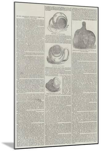 On Some Remarkable Examples of Irregular Growth in the Oyster--Mounted Giclee Print