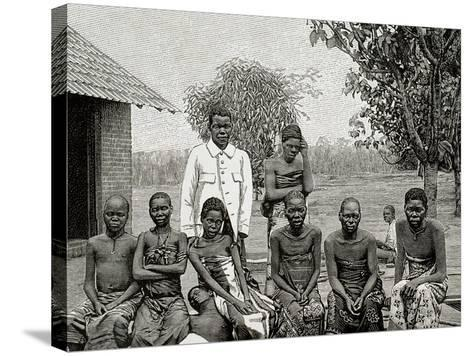 Africa. Native Affected by Sleeping Sickness, 1903--Stretched Canvas Print