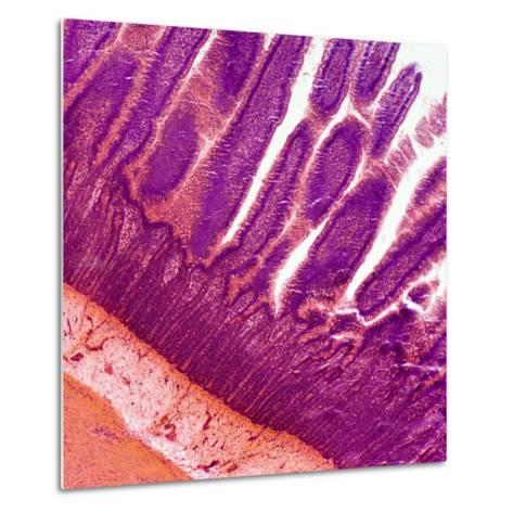Microscopic Image at 100X of a Small Intestine Showing the Villi-Greg Dale-Metal Print