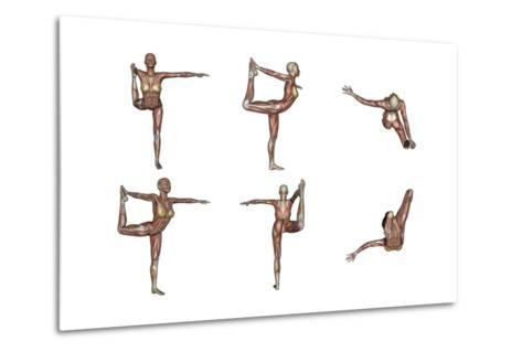 Six Different Views of Dancer Yoga Pose Showing Female Musculature--Metal Print