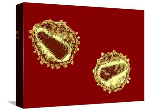 Hiv Viruses-Hans Gelderblom-Stretched Canvas Print