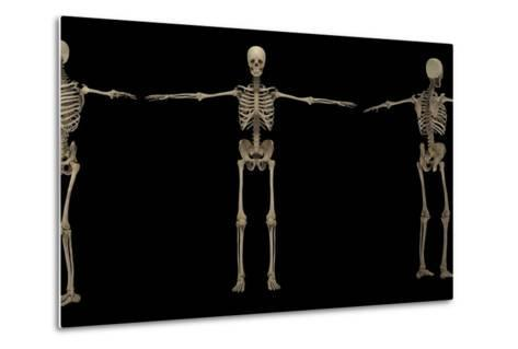 3D Rendering of Human Skeletal System at Different Angles-Stocktrek Images-Metal Print