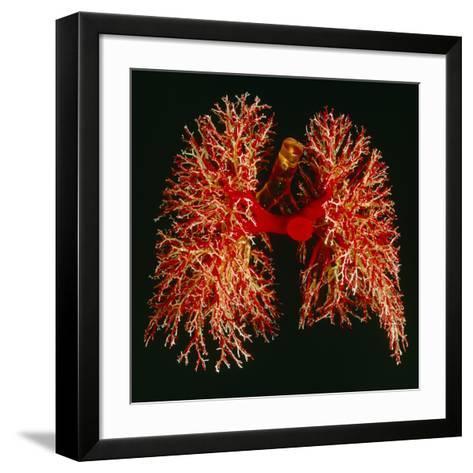 Resin Cast of Pulmonary Arteries And Bronchi-Martin Dohrn-Framed Art Print