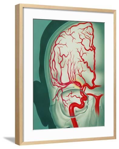Cerebral Vascular Accident (CVA): Embolism Artwork-John Bavosi-Framed Art Print